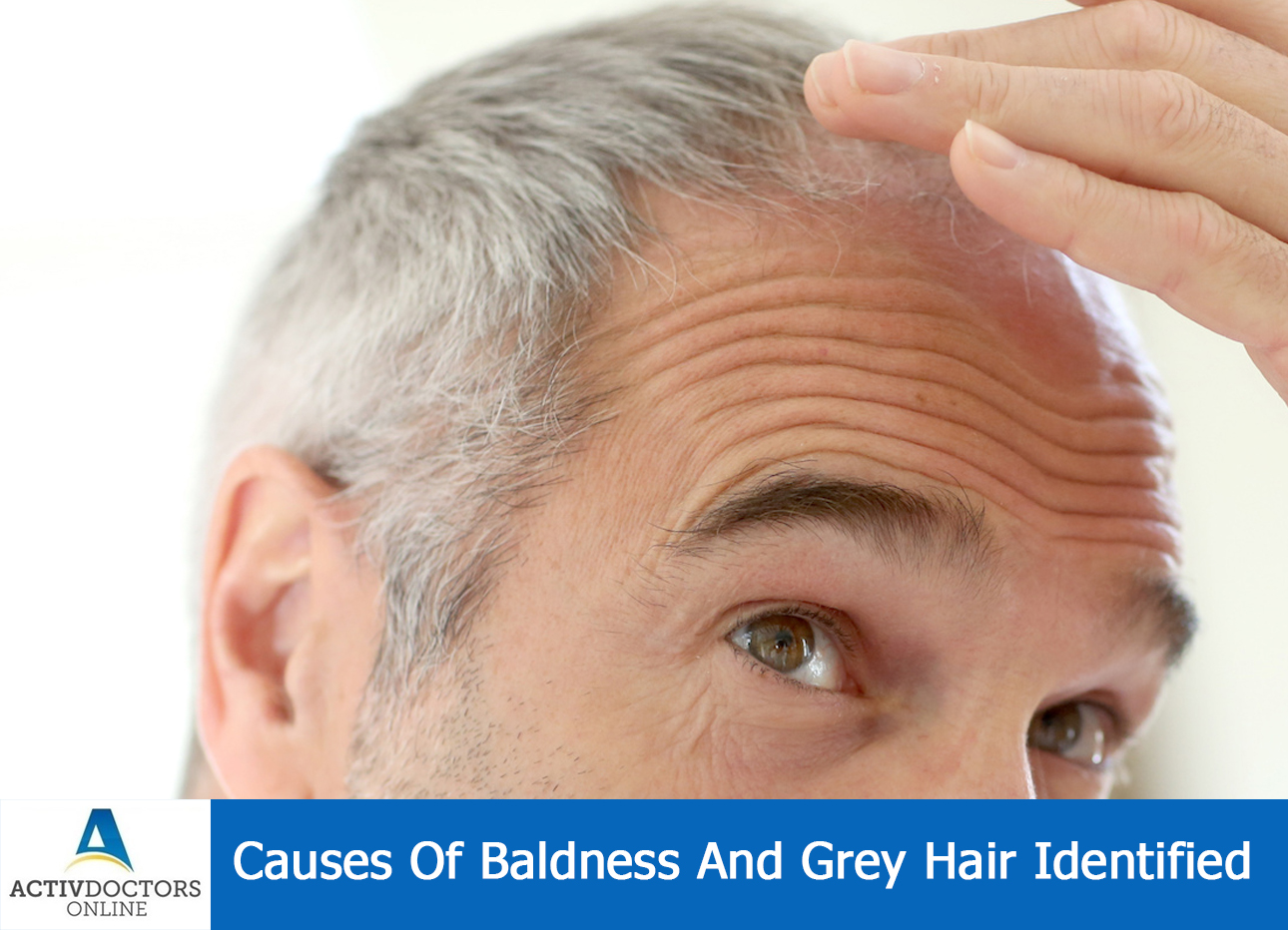 Causes Of Baldness And Grey Hair Identified