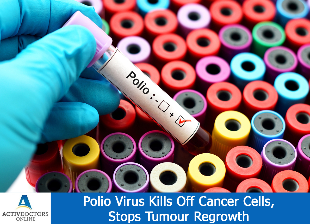 Polio Virus Kills Off Cancer Cells, Stops Tumour Regrowth