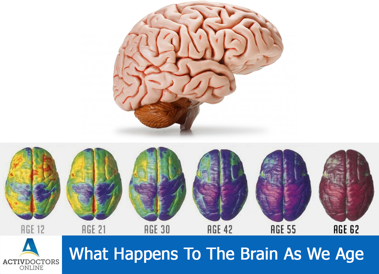What Happens To The Brain As We Age